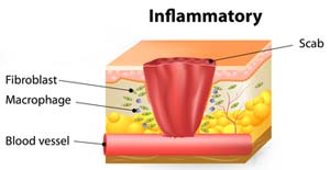 inflammatory stage of wound healing