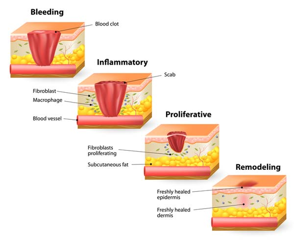 stages of wound healing - bleeding , inflammatory, proliferative, remodeling