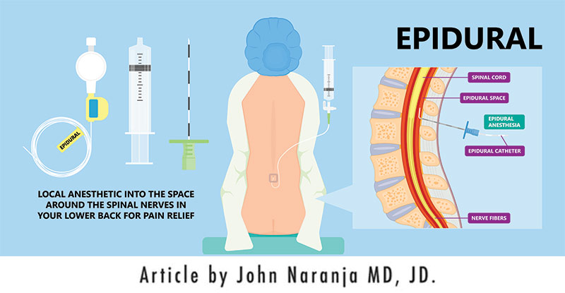 epidural steroid injection iillustration
