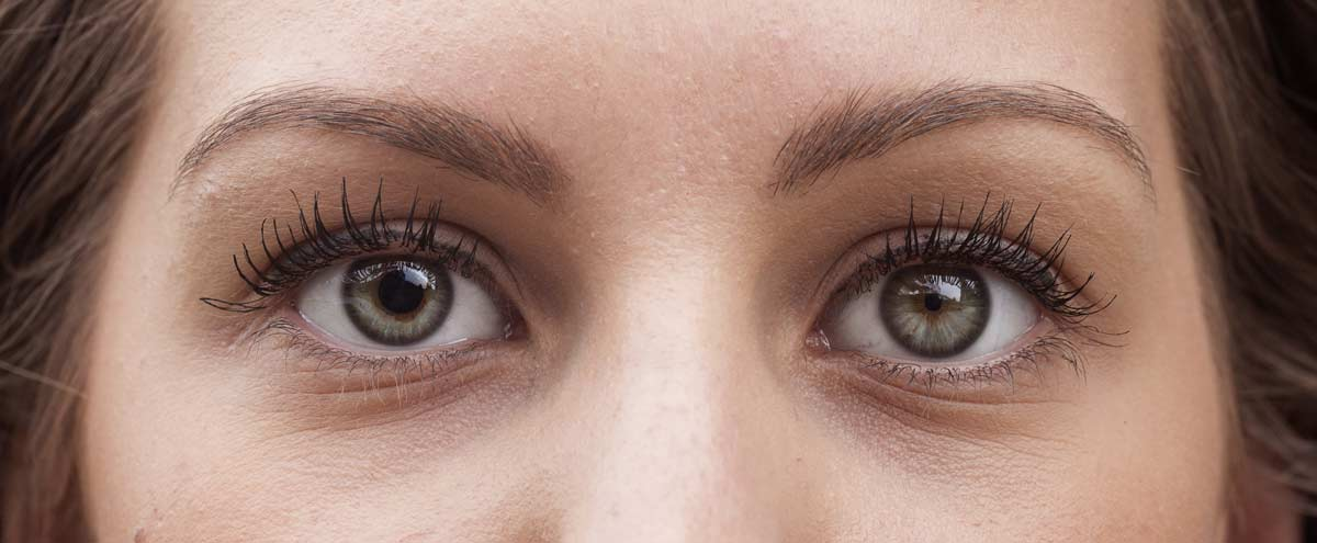 girl with one pupil larger than the other. A common condition called anisocoria