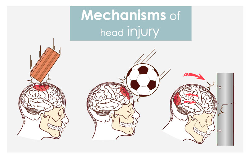 mechanisms of head injury and concusion